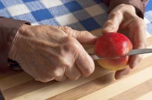 alzheimer pomme